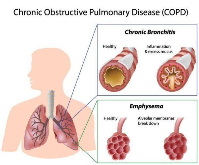 COPD-diagram_160331_100539